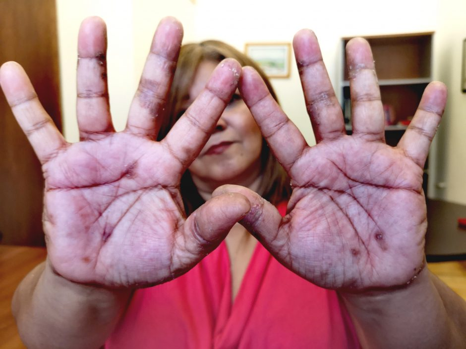 Maribel aus einer Gemeinde in der Nähe der Kupfermine zeigt die Symptome der Hautkrankheiten an Händen und Füßen