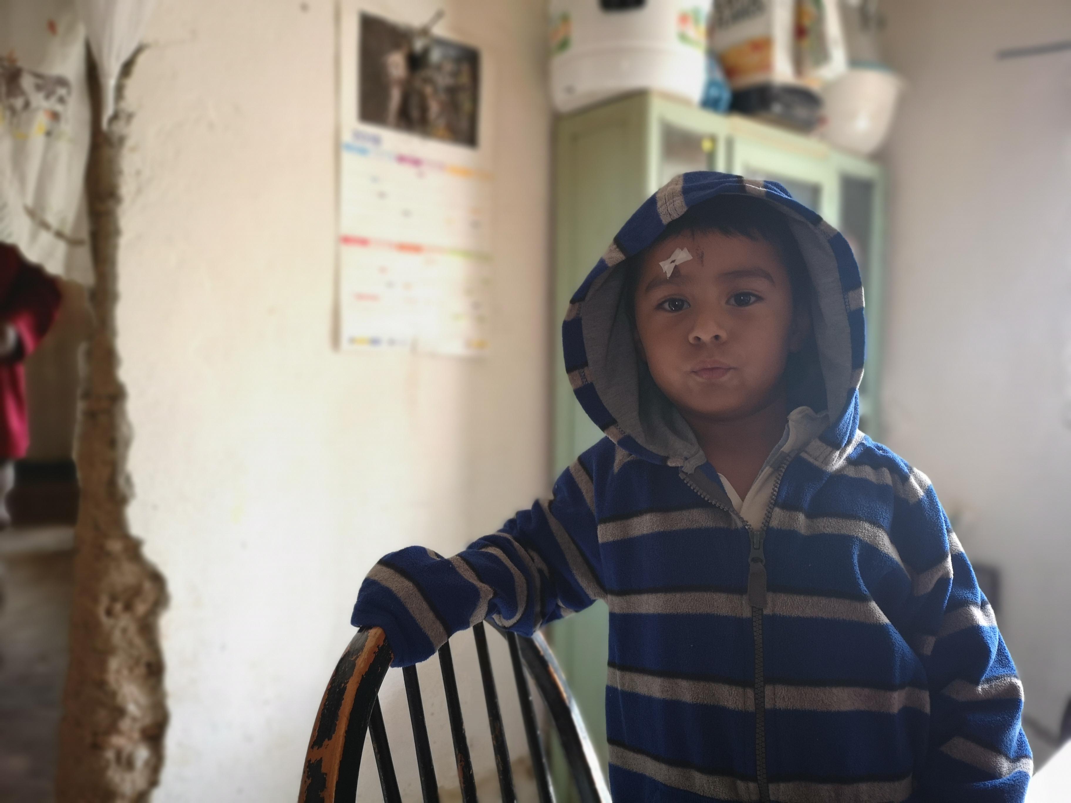 Ein etwa 4-jähriger Junge aus einer Gemeinde nahe der Kupfermineg leidet an einer Hautkrankheit, wie man an Wunden auf seiner Stirn sieht.